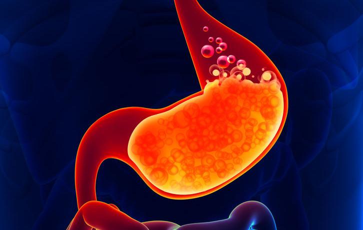 Heartburn – A Holistic Approach