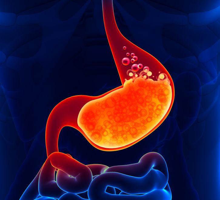Heartburn - A Holistic Approach (feature)