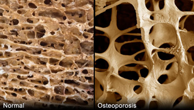 Vitamin D: Bone Protection for Most