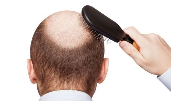 how-zinc-can-reverse-and-prevent-hair-loss_hairloss