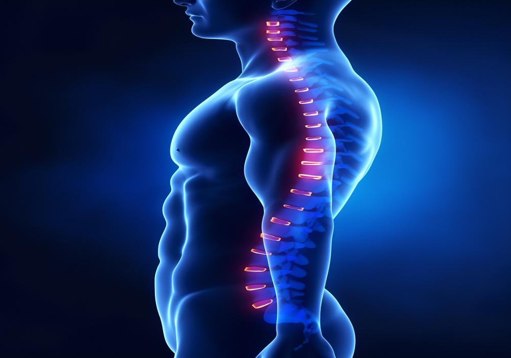 7 tips to improve your posture_good posture xray