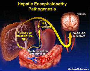 Hepatic Encephalopathy: Protecting Your Liver Protects Your Brain_HE pathogenesis