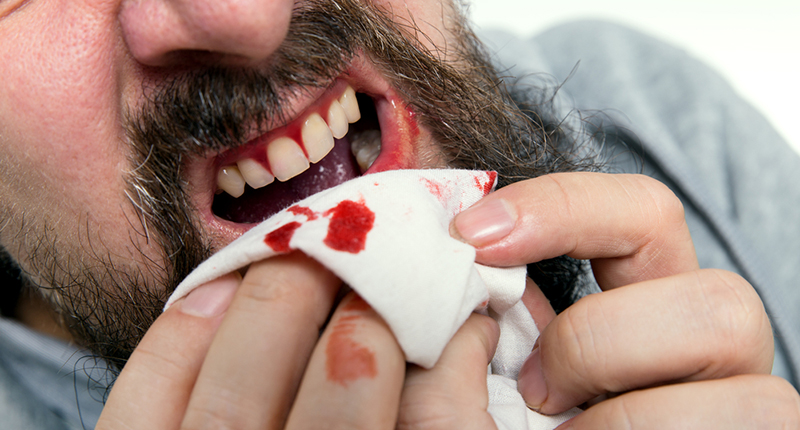 7 Reasons why your Bleeding Gums Need Attention_bleeding gums_ man